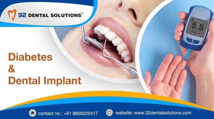 diabetes and dental implants