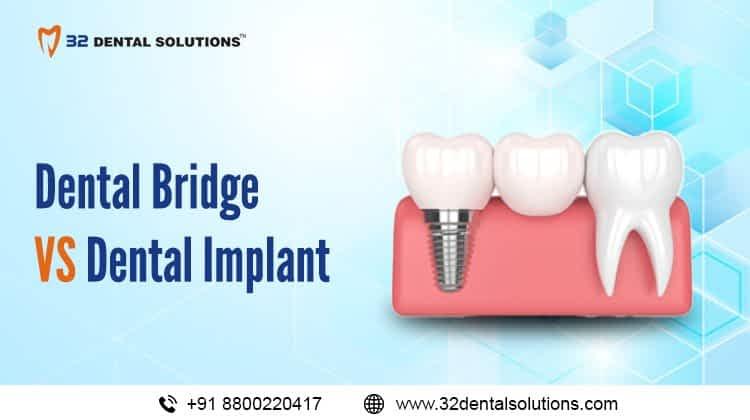 Dental Bridge vs Dental Implant
