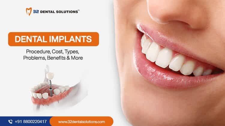 Best Dental Implants in Gurgaon