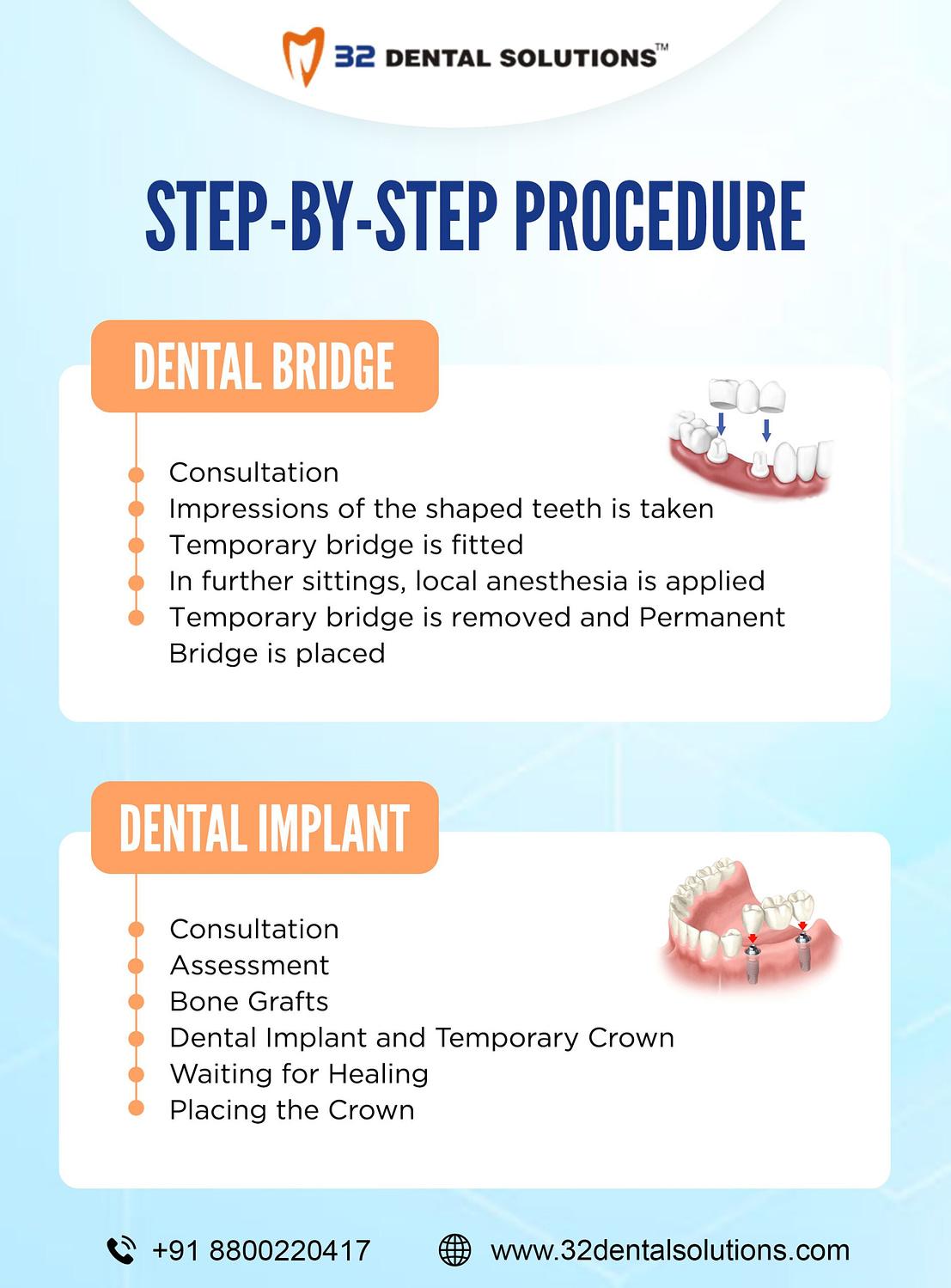 Procedure for Dental Bridge and Dental Implant