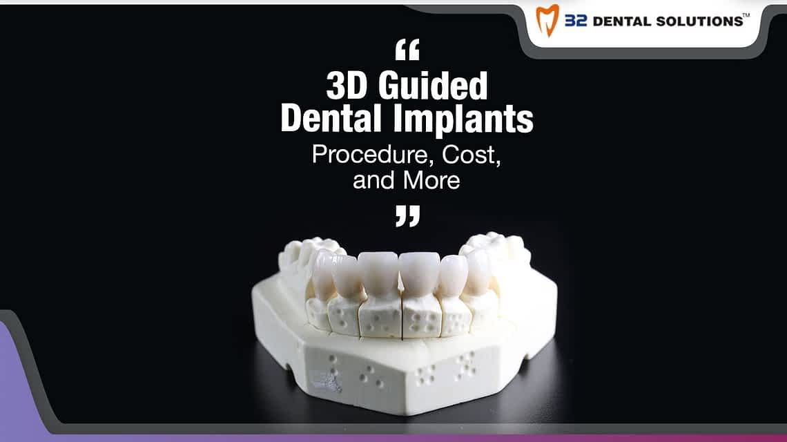 3D-guided-dental-implants